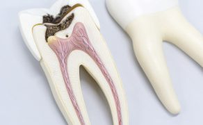 Odbudowa zęba po leczeniu endodontycznym; fot. istockphoto