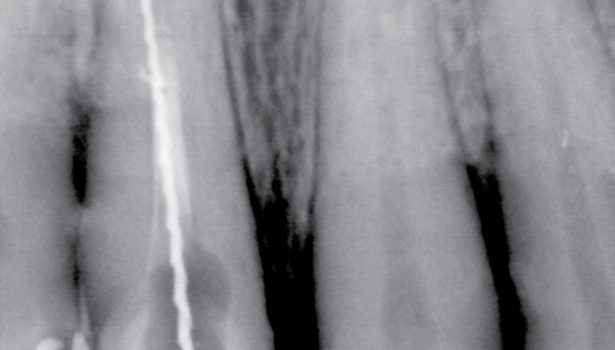 zamknięcie perforacji korzenia