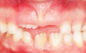 dodatkowy ząb sieczny