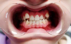 Dodatkowe zęby sieczne boczne w szczęce – opis przypadku