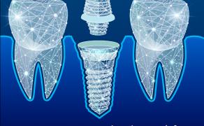Chirurgia i implantologia - bezpłatny dodatek do TPS